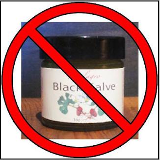 Black Salve Saved my Life' | Laura Bond - Health Coach
